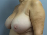 Breast Lift (Mastopexy) with Augmentation