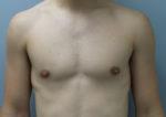 Male Breast Reduction / Gynecomastia