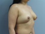 Breast Augmentation with Fat Grafting